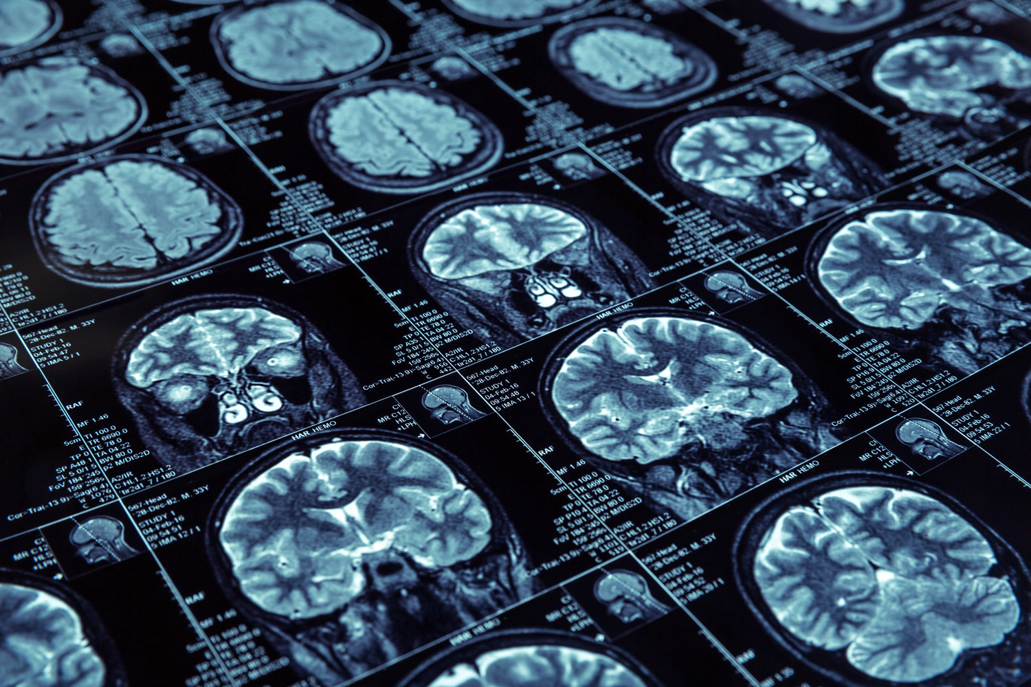 array of brain images