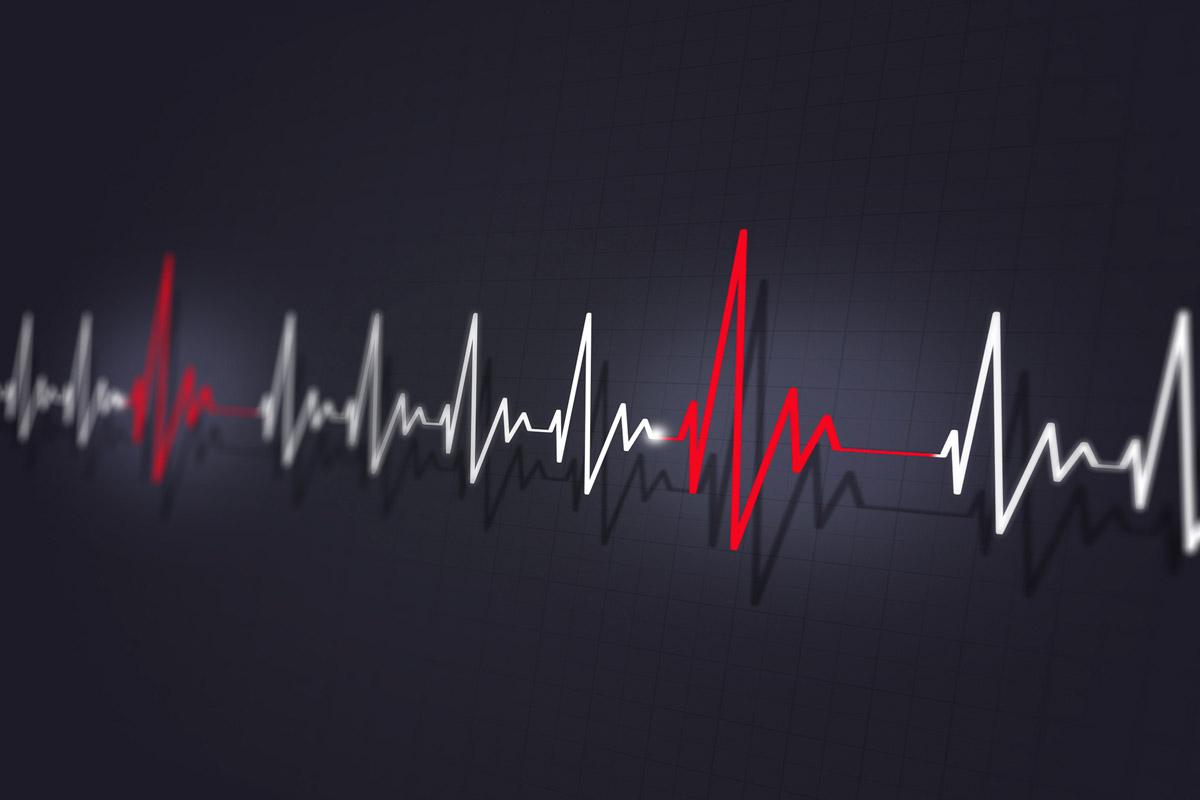 Algorithm diagnoses heart arrhythmias with cardiologist-level accuracy | Stanford News