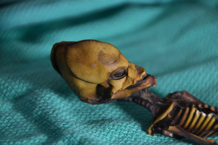 Skeleton found in Chile was tested to reveal mutations in seven genes that separately or in combinations contribute to various bone deformities, facial malformations or skeletal dysplasia.