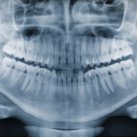 panoramic x-ray of a healthy jaw
