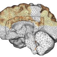image of a computer model showing amyloid beta proteins throughout brain in dementia cases