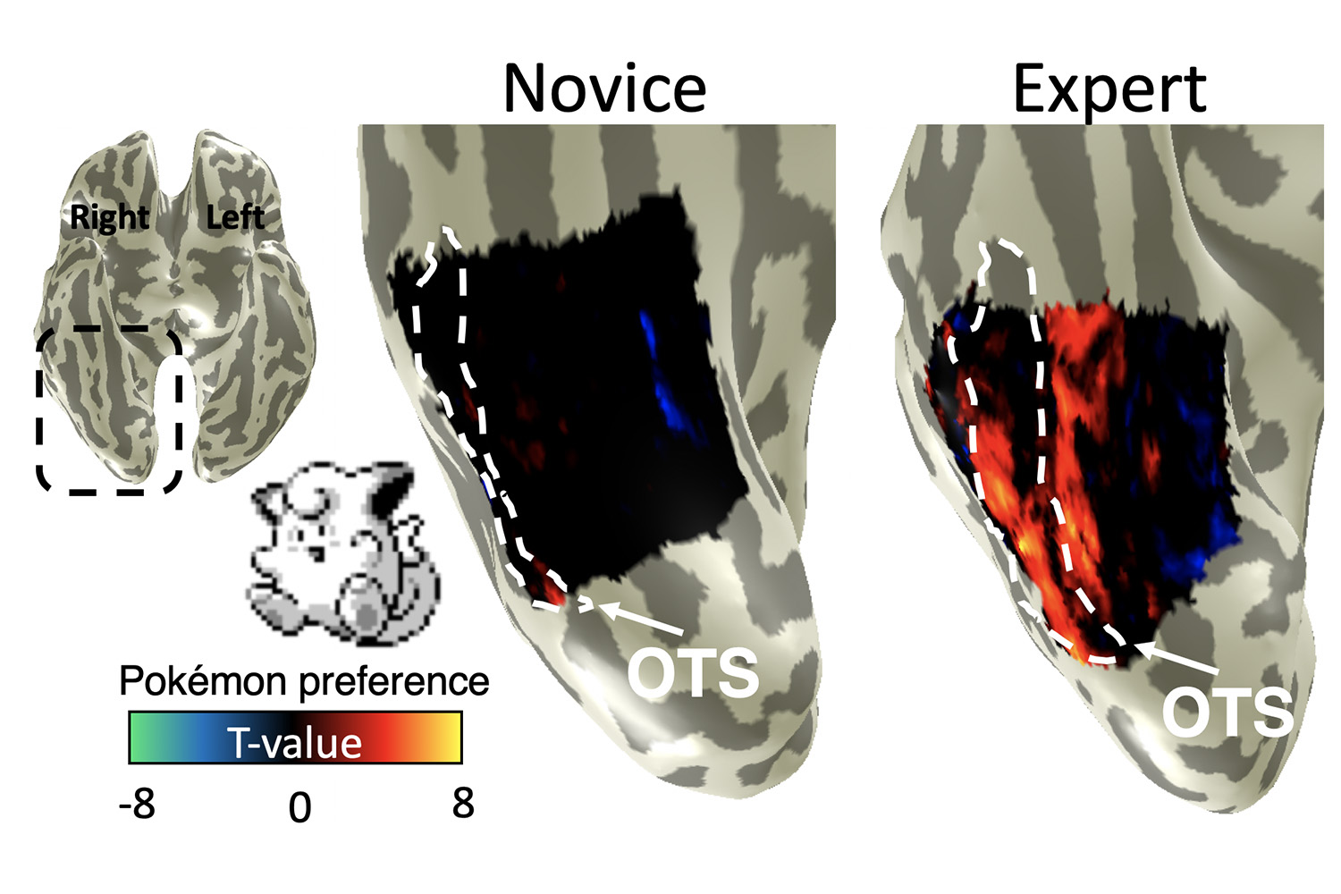 The occipitotemporal sulcus (OTS) of adults who played Pokémon extensively as children activated more (right) upon seeing images of Pokémon characters from their childhood videogames compared to adults who did not (left).