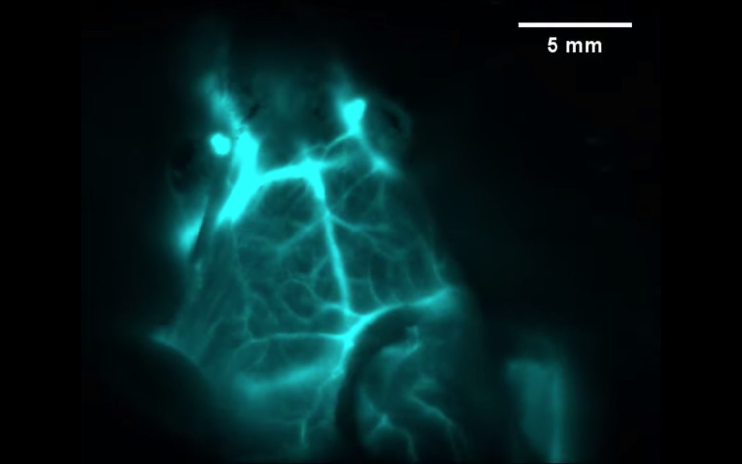 Infrared vision for immunotherapy | Stanford News